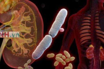 Bác sỹ cảnh báo dấu hiệu nhiễm khuẩn tiết niệu, chẩn đoán và cách điều trị