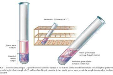Quy trình kỹ thuật lọc rửa tinh trùng để bơm vào buồng tử cung