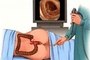 Video nội soi đại tràng