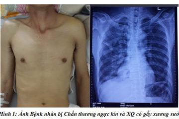 Chẩn đoán và xử trí ngoại khoa chấn thương ngực kín