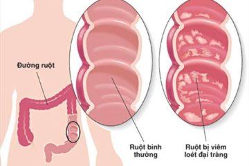 bệnh viêm loét đại trực tràng chảy máu