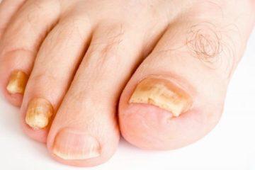 hạn chế hôi chân nấm móng vào mùa mưa