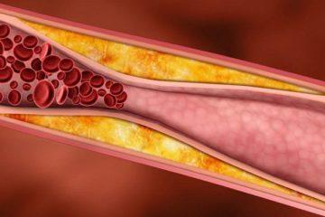 Siêu âm Doppler chẩn đoán tổn thương xơ vữa, tắc mạch