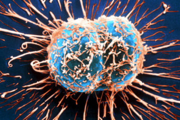 thực phẩm có khả năng tiêu diệt tế bào ung thư