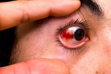 Mắt bị chảy máu ở lòng trắng