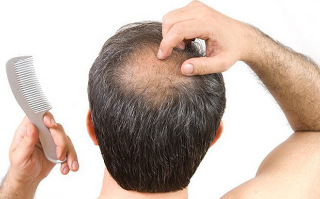Ăn nhiều đậu phụ gây hói đầu ở nam giới