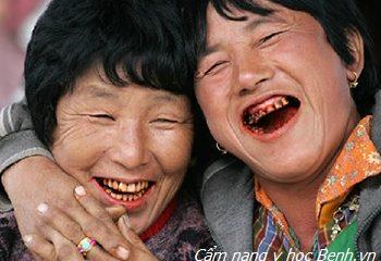 Đài Loan kêu gọi người dân không ăn trầu cau vì nguy cơ ung thư miệng