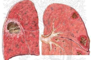 Bệnh áp xe phổi