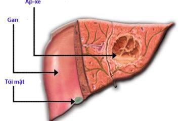 Điều trị áp xe gan do vi khuẩn theo hướng dẫn của Bộ Y tế