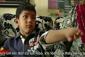 Bàn tay sinh học mang đến cuộc đời mới cho cậu bé người Malaysia