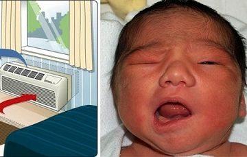 Mặt trái khi sử dụng điều hòa: Bé 6 tháng tuổi bị méo miệng