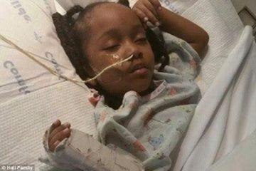 Bé gái 4 tuổi bị tổn thương não, liệt người chỉ vì nhổ răng sâu