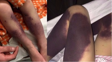 Bé gái 4 tuổi suýt phải cưa chân từ một vết bầm nhỏ