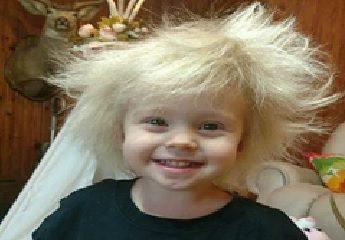 Bé gái mắc căn bệnh tóc 'chổi rơm' giống thiên tài Albert Einstein