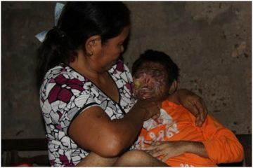 Quảng Trị: Bé gái 13 tuổi bị bệnh lạ dị dạng hết khuôn mặt