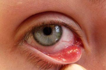 Hướng dẫn điều trị bệnh mắt hột Bộ Y tế ban hành