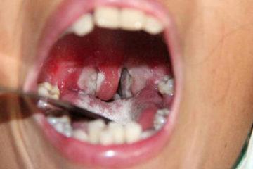 Bệnh Bạch hầu triệu chứng, chẩn đoán, điều trị và phòng bệnh