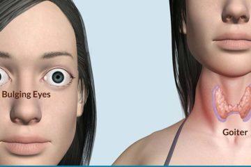 Triệu chứng lâm sàng và cận lâm sàng của bệnh Basedow