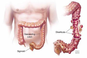 Triệu chứng bệnh crohn và một số ảnh hưởng của bệnh
