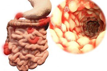 Bệnh Crohn quanh hậu môn
