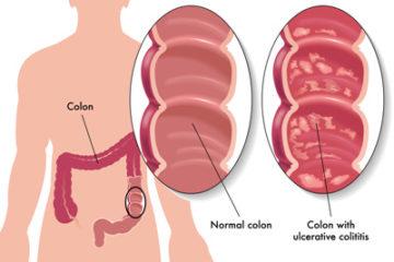 Bệnh Crohn và nguyên nhân của bệnh
