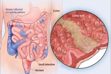 Biểu hiện lâm sàng và xét nghiệm bệnh Crohn