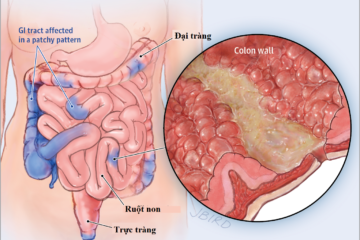 Điều trị bệnh Crohn