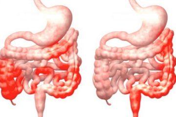 Chẩn đoán và biến chứng của bệnh Crohn