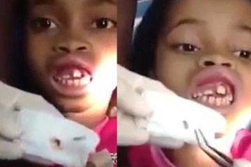 Rùng mình dòi bò lổn nhổn trong miệng bé gái 10 tuổi