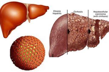 Bệnh viêm gan virus C mạn tính