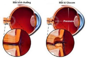 Làm thế nào để phát hiện sớm bệnh glocom