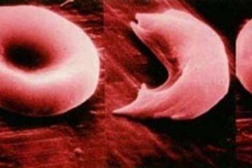 Bệnh hồng cầu hình liềm – Nguyên nhân và cách điều trị