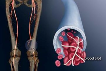 Bệnh huyết khối tĩnh mạch sâu – Nguyên nhân và cách điều trị
