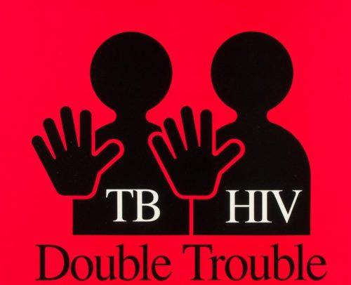 Bệnh nhân HIV bị nhiễm Lao