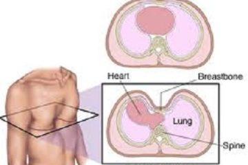 Bệnh lõm lồng ngực và các phương pháp phẫu thuật