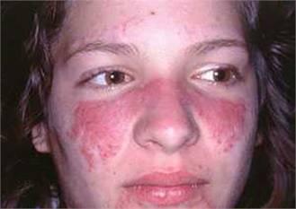 Làm thế nào để nhận biết sớm bệnh lupus ban đỏ