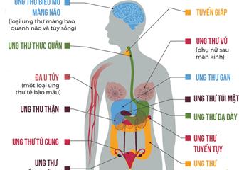 40% bệnh nhân ung thư liên quan đến thừa cân béo phì