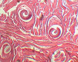Bệnh nhiễm ký sinh trùng Giun xoắn