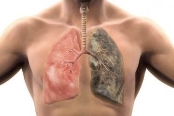 Dễ chết vì bệnh phổi tắc nghẽn mãn tính