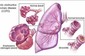 Chẩn đoán bệnh phổi tắc nghẽn mạn tính (COPD)