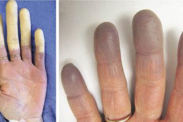 Một số vấn đề về bệnh Raynaud và thuốc điều trị