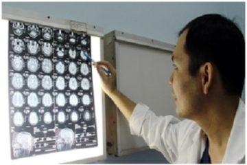 Bệnh thần kinh sẽ khỏi hoàn toàn nếu được phẫu thuật