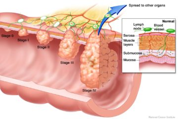 dấu hiệu ung thư đại trực tràng