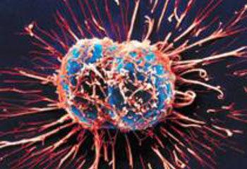 Điểm mặt những loại ung thư nguy hiểm khó phát hiện