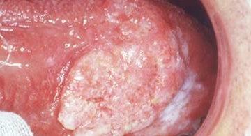 Dấu hiệu cảnh báo bệnh ung thư miệng cùng phương pháp phòng ngừa