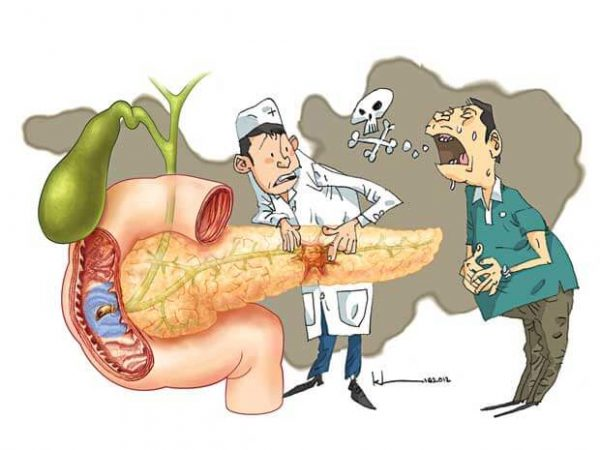 bệnh ung thư tụy