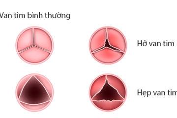 Các bệnh van tim thường gặp