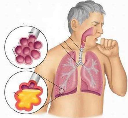 bệnh hô hấp