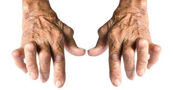 đôi bàn tay bị viêm khớp dạng thấp
