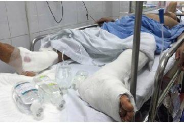 Hy hữu Bệnh viện Việt Đức mổ nhầm chân trái thành chân phải